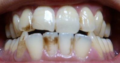 プレミアムブラントゥース歯の写真初日前歯