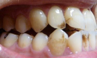 プレミアムブラントゥース歯の写真初日右側