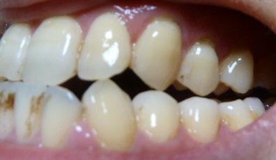 プレミアムブラントゥース歯の写真初日左側